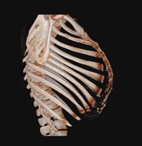 Glockenthorax_1_klein